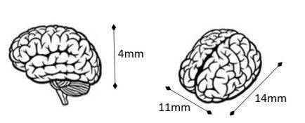 cerebrum diagram